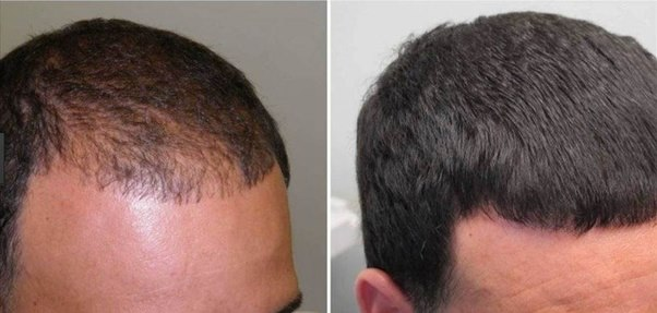Minoxidil for hair loss